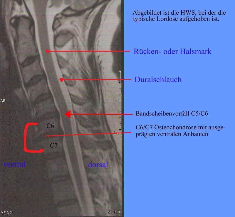 hochgradige osteochondrose